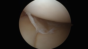 Torn Medial Meniscal Cartilage