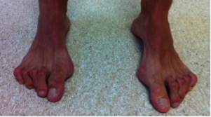 Foot & Ankle - Joint Reaction