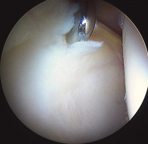 Keyhole appearance of torn labrum (rim) with some surface damage inside the hip socket