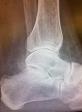 Ankle joint arthritis