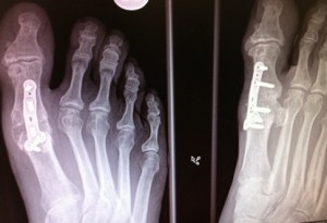 Plate and screw fusion 1st MTPJ for hallux rigidus