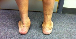 A flat left foot with a collapsed medial arch and valgus heel